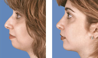 Rhinoplasty with chin implant front view after 6770