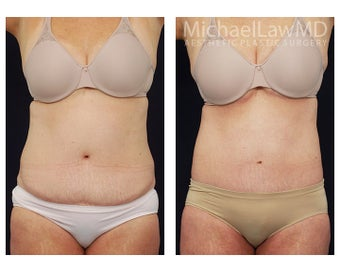 Liposuction before 397121