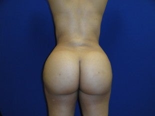28 year old Brazilian Butt Lift after 626505