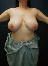 Breast Reduction before 96851