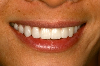 Ortho, dental implants, bone graft, gum graft, all porcelain veneers after 503156