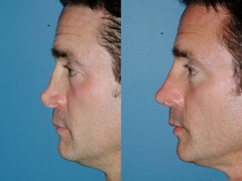 Revision rhinoplasty after 334286
