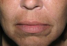 Juvederm before 336245