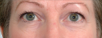 Laser Eyelid Surgery before 369077