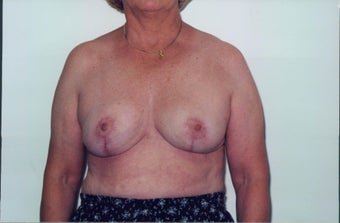 Breast Reduction after 218958