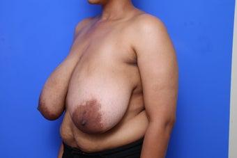 Breast Reduction before 621909