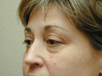Bilateral Upper Blepharoplasty with Mid-Face Lift before 425046