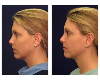 Neck Lift & Lower Facial Rejuvenation after 376152