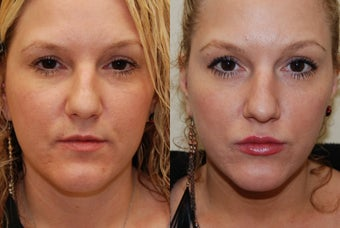 Lip Augmentation with Silikon-1000. 2 treatments. before 487938