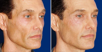 Sculptra after 496295