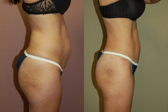 Tummy Tuck after 368140
