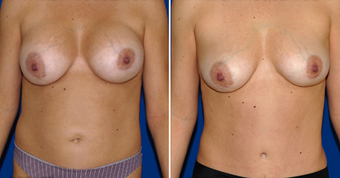 Breast Implant Removal before 495858