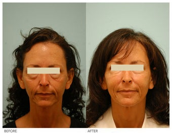 Injectable Fillers (Restylane/Perlane) before 136774