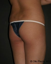 Buttock Augmentation 566734