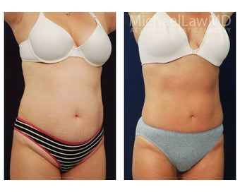 Liposuction after 495015