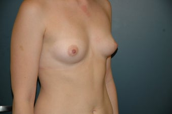 Breast augmentation before 203397