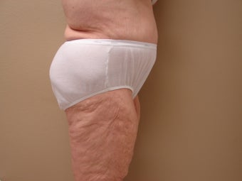 Tummy Tuck with muscle tightening - no liposuction used 384927