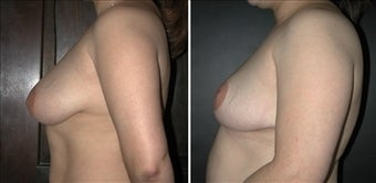 Breast Reduction  before 110092