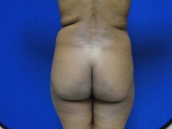 Brazilian Butt Lift/Fat Grafting Buttock Augmentation before 599828