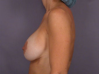 Breast Revision Surgery  before 306992