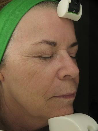 Fraxel Dual for wrinkles in cheeks and pigmentatioin after 227023