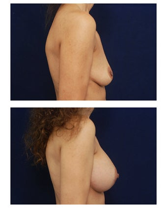 Breast Augmentation 385517