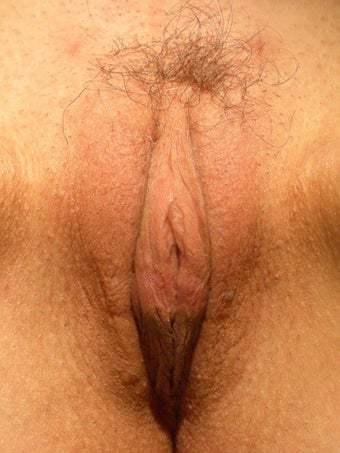 Labiaplasty after 281454