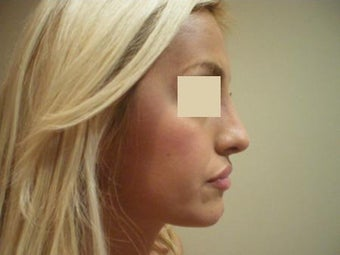 Rhinoplasty  after 137956