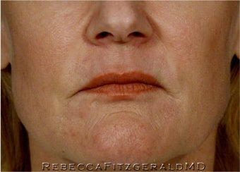 Sculptra, Botox, Juvederm and Restylane before 319352