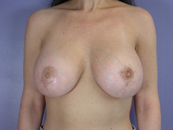 Breast Lift / Breast Augmentation   after 291182