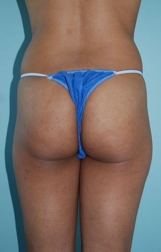 Buttock Augmentation before 534393
