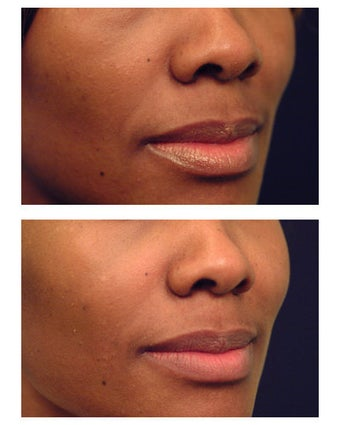 Juvederm before 301150