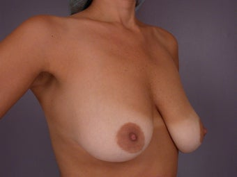 Breast Lift / Breast Augmentation before 291177
