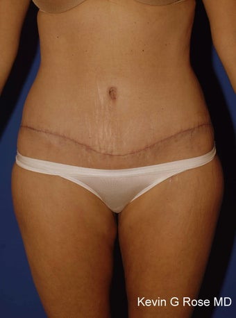 Full Tummy Tuck after 546317