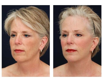 Neck Lift, Fat Grafting 347553