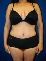 Extended Tummy Tuck (abdominoplasty) after 128663