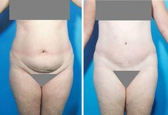 Abdominoplasty before 356396