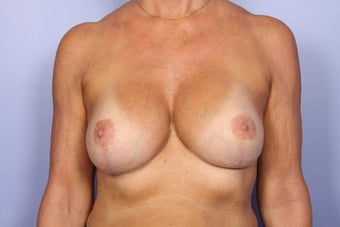 Breast lift and Implants after 306356