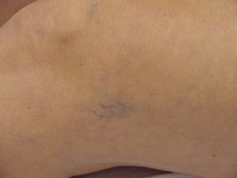 Sclerotherapy of spider veins before 109793
