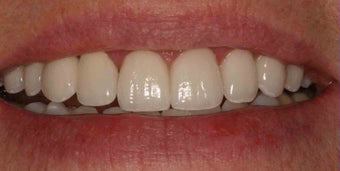 Porcelain Veneers and Crowns after 485379
