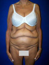 Extended Tummy Tuck Surgery before 133931