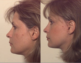 Composite facelift after 102532