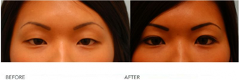 "Asian Blepharoplasty (""Double Eyelid"" Procedure) before 136817"