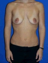 Breast Augmentation Surgery before 144634
