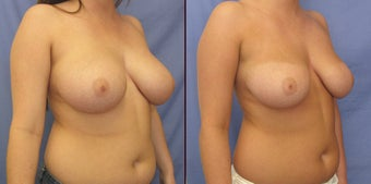 "Breast Reduction with liposuction (""scarless breast reduction"") after 98604"