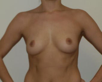 Bilateral Breast Augmentation before 233215