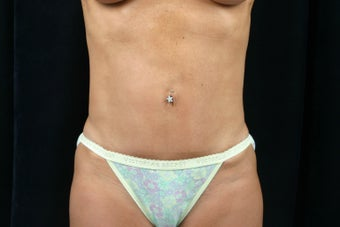 Tummy Tuck after 301782