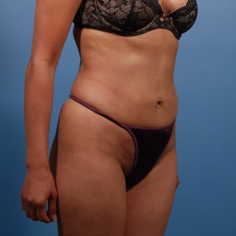 Liposuction after 207568