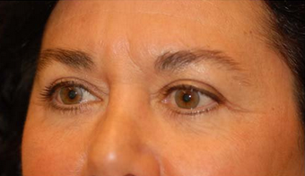 Eyelid Surgery / Fat Grafting 347510
