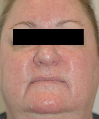 Rosacea Laser Treatment Los Angeles Before and After Pictures after 411345